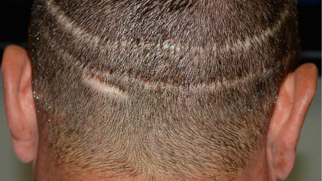 Cicatriz Método FUSS